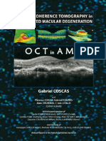 Optical_Coherence_Tomography_in_Age-Related_Macular_Degeneration