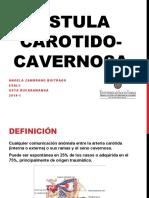 FISTULA CAROTIDOCAVERNOSA + CASO CLINICO