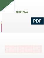 EJEMPLOS DE TRAZADOS DE ARRITMIAS