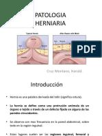 8. PATOLOGIA HERNIARIA-harold.pptx