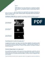 Glaucome (tout sur le).pdf