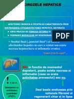 5. Cirozele hepatice