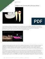 Decálogo-de-la-prótesis-parcial-removible-a-extremo-libre-(Dr.Ernest-Mallat)