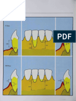 Caffesse, Raul G. Lateral Sliding Flap with a Free Gingival Graft Technique in the Treatment of Localized Gingival Recessions