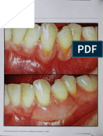 Holbrook T, Ochsenbein C. Complete coverage of the denuded root surface with a one-stage gingival graft. Int J Periodontics Restorative D.pdf