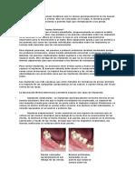 Los implantes son elementos metálicos que se ubican quirúrgicamente en los huesos maxilares