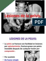 traumalesionesdelapelvis-150923181832-lva1-app6892