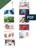 Diabetes Mellitus Tipo Hipertensión Arterial