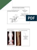 7-Tenotomia Do Flexor Profundo
