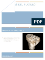 Fracturas del Platillo tibial.pptx