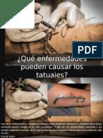 Eustiquio Lugo - ¿Qué Enfermedades Pueden Causar Los Tatuajes?