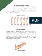 Tipos mas frecuentes de  fractuas.docx