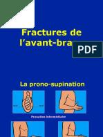 11- avant -bras - fractures.ppt