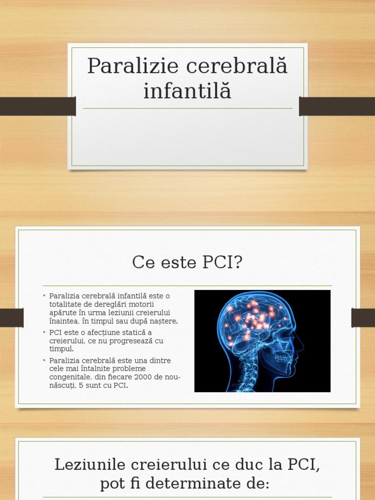 paralizie cerebrală cu insuficiență vizuală sclavul oftalmologului