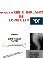 FRACTURES & IMPLANTS LL.pptx