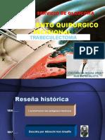 Tratamiento Quirurgico Incicional Del Glaucoma.pptx
