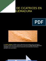 MANEJO DE CICATRICES EN QUEMADURA TELESALUD