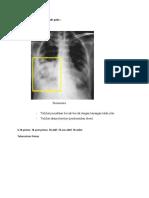 5. Gambaran Radiografi Thoraks