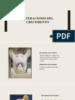 ALTERACIONES DEL CRECIMIENTO.pdf