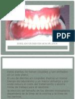 271106246-Enfilado-de-Dientes-Monoplanos-Exposicion-de-Protesis-Completa.pptx