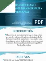 2 SEMINARIO ADF MALOCLUSION CLASE I  (1)
