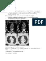 Varianta V radiologie