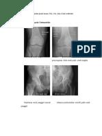 10. Gambaran Radiografi Polos Pada Kasus Osteomielitis, RA, OA, Dan Gout Arthritis