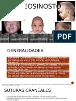 Craneosinostosis.pptx