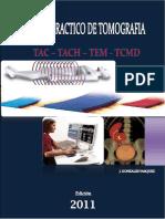 TAC – TACH – TEM – TCMD - MANUAL PRACTICO DE TOMOGRAFIA.pdf