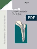 Gamma3_trochanteric_nail_180_and_170_optech_2013109-fr_rev_0 [1721].pdf
