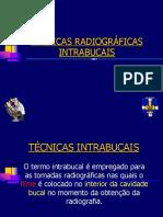 4 - TECNICAS INTRABUCAIS peri (1).pdf