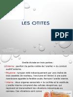 OTITES.pptx
