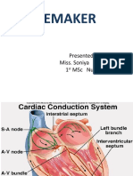 pacemaker ppt.pptx