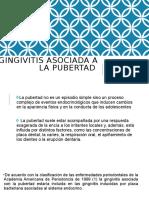GINGIVITIS ASOCIADA A LA PUBERTAD