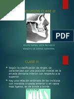 CLASE-III