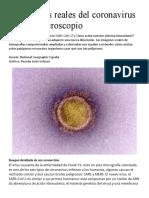 Fotografías reales del coronavirus bajo el microscopio (1).pdf