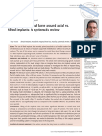 implante angulate ejoi_2014_02_sup0171