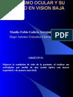 Caso Clinico Vision Baja (Albinismo)