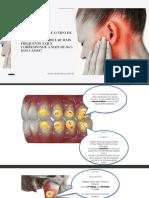 Drª Mara E-book - Você sabe qual é o tipo de  Disfunção Temporomandibular mais frequente e que corresponde a mais de 80% dos casos_