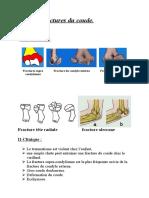 5- Fractures du coude.doc