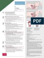 bakri catheter