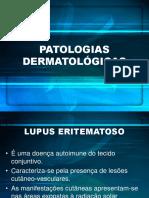 UC4 - Lupus