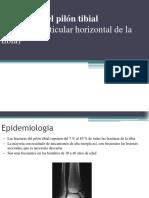 fracturasdelpilntibial