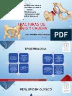 Fracturas de pelvis y cadera