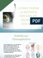 RETINITIS POR CMV EN PACIENTES CON SIDA.pptx