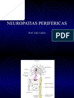 Mononeuropatias 3MA