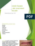 Cheptene Anastasia Grupa S 1507 Elementele lezate primare ale mucoasei bucale