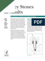 Kidney Stones Adults