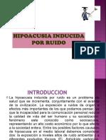 HIPOACUSIA INDUCIDA.ppt