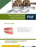 Maloclusion clase iii